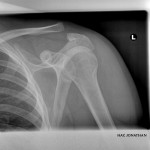 Separated Shoulder from Collision in Oostende. 3rd run.